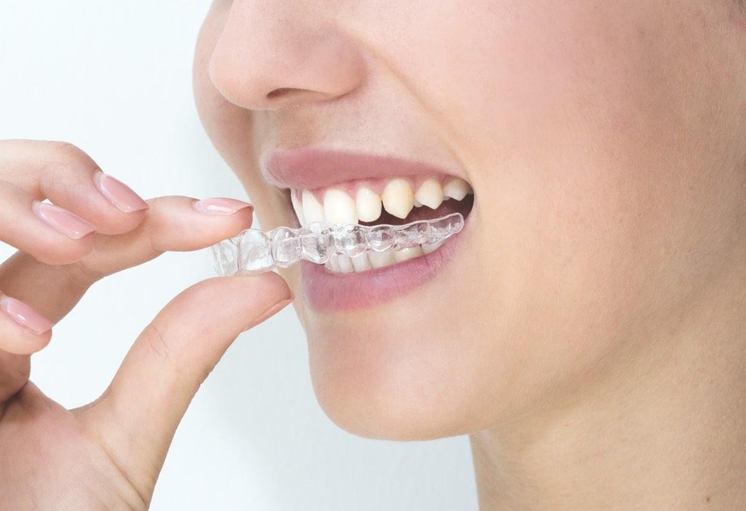 Apparecchi dentali invisibili